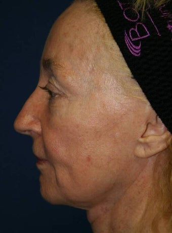 Sculptra Liquid Lift before 137175