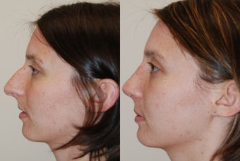 Rhinoplasty Surgery. 1 month post-op. before 210028