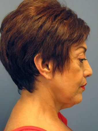 Neck Lift, Platysmaplasty 634750