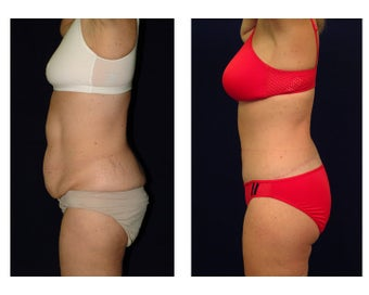 Tummy Tuck or Abdominoplasty before 283079