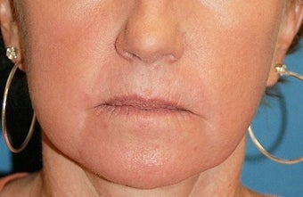 Co2 Laser Skin Resurfacing after 511925