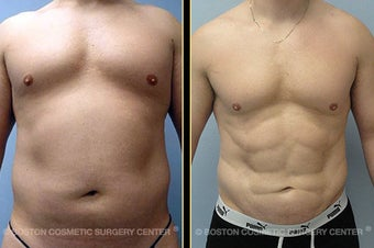 VASER LipoSelection and HiDef Liposculpture before 561141