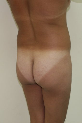 Buttock augmentation / Fat transfer