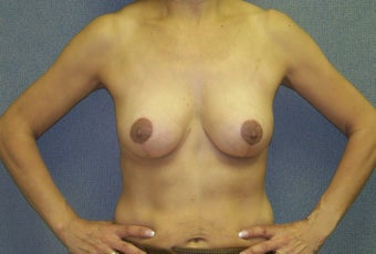Breast Lift with internal bra after 385199