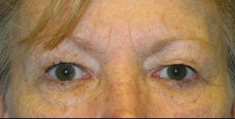 Upper and Lower Lid Blepharoplasty before 147719