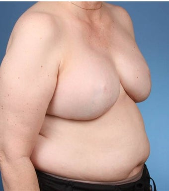 Breast Reconstruction 539979