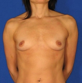 Breast Augmentation before 304411