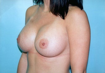 Breast Augmentation (425cc Saline Implants) after 278051