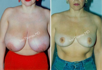 Breast Reduction before 243742