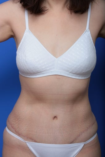 Abdominoplasty after 615682