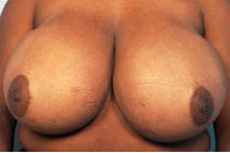 Breast Reduction before 141484