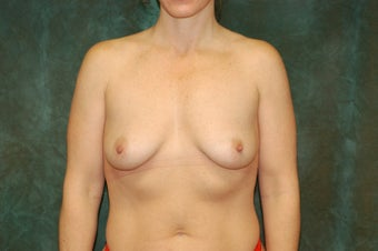 Women's Breast Augmentation: Enlarge and Minilift before 553811