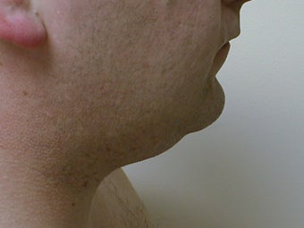 Liposuction of neck/chin area before 590914