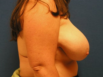 Breast Reduction 475931