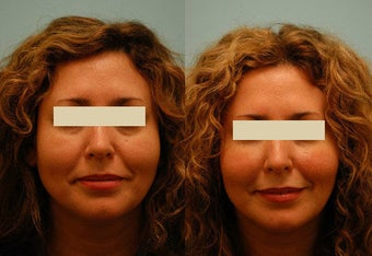 Injectable Fillers (Restylane/Perlane) before 136768