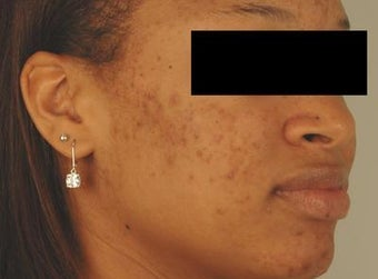 Laser Acne Scar Removal before 82947