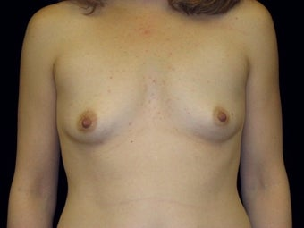 Breast augmentation before 293956