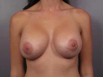 Breast Implant Revision after 307418