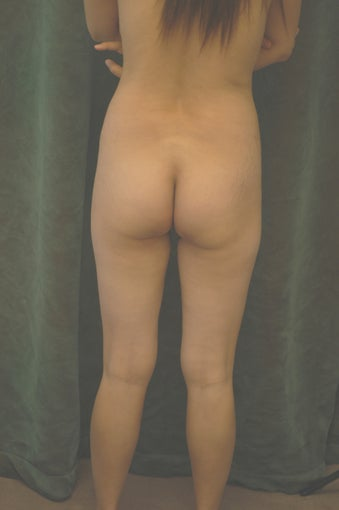 Women's Buttocks Augmentation  518118