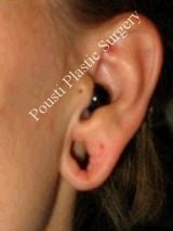 Earlobe Repair Surgery before 612304