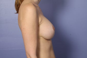 46 yr old with droopy and deflated breasts 630801