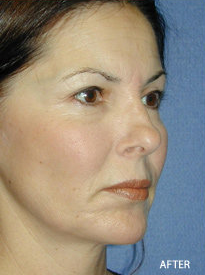 Cheek Implant Surgery after 328076