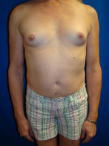 Transgender Surgery- Breast Implants before 131869