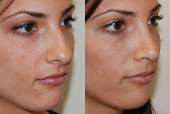 Rhinoplasty Surgery before 206915