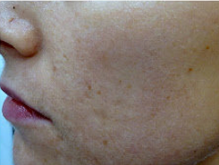 Fractional laser used to treat acne scars 460041