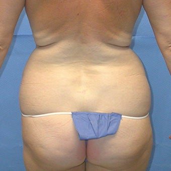 Liposuction of trunk. before 648145