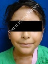 Ear Surgery (Otoplasty) after 579092