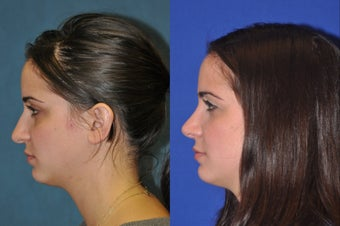 Rhinoplasty before 256040