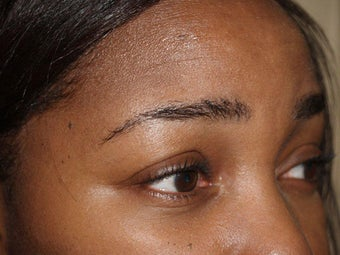 Eyebrow Transplantation 335791