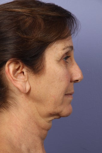 53 yr old Face and Necklift 622095