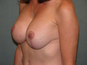 Mastopexy augmentation after 333448