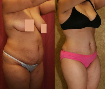 abdominoplasty- tummy tuck after 468831