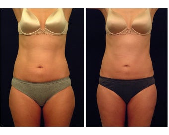Liposuction before 397030
