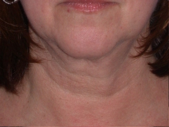 Necklift before 208441
