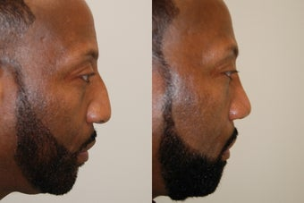 African-American Rhinoplasty: Profile view before 128282