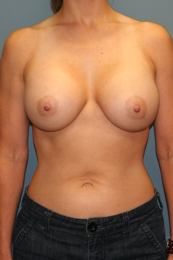 Breast augmentation /implant after 539061
