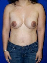 Revision Breast Surgery after 356588