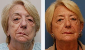 Facial Paralysis Reconstruction and Facelift before 346229