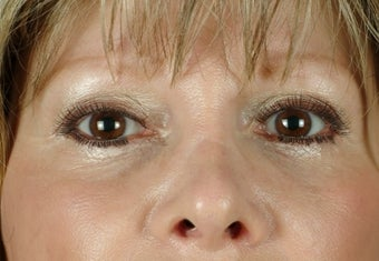 under eye fillers after 502765