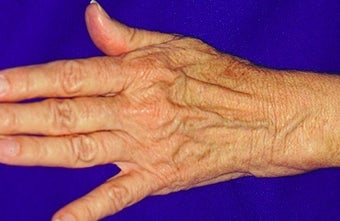 Sclerotherapy for hands before 371746