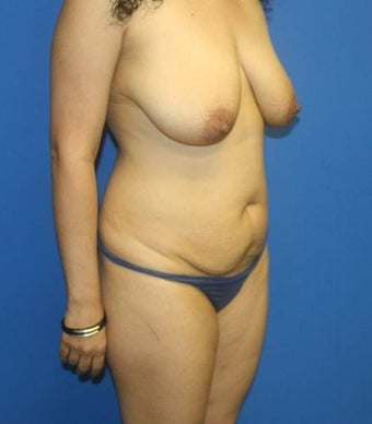 Mommy makeover, Breast Implants, Breast Lift, Tummy Tuck, Liposuction 402388