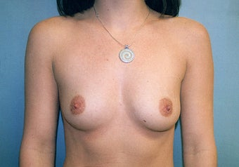 Breast Augmentation (425cc Saline Implants) after 238383