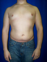 Pec Implants before 130082