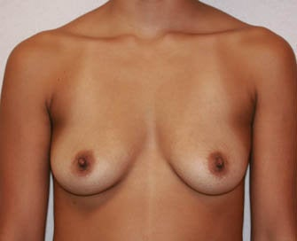 Augmentation Mammaplasty (Breast Implants) before 226506