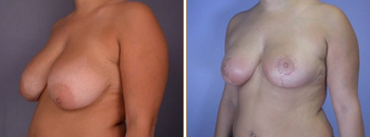 Breast Reduction & Lift before 270050