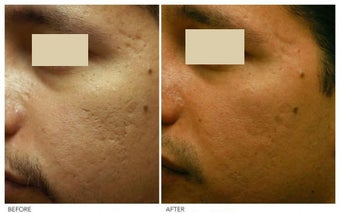 Acne Scarring Correction after 136804